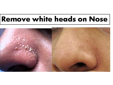 hqdefault - I Have White Pimples In My Nose