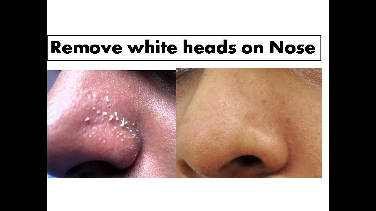 how to remove whiteheads