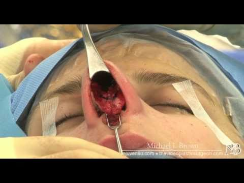 Rhinoplasty or nose job using open technique