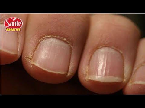 ongles fongiques infection fongique des ongles décoloration des ongles