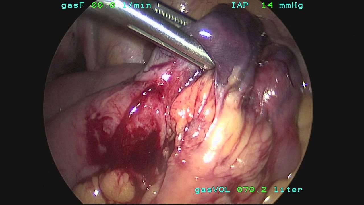 Incarcerated Femoral Hernia - YouTube