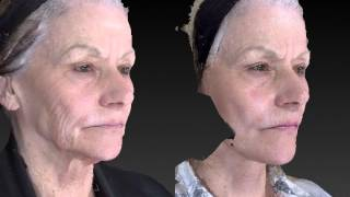 Facelift 3D Before and After-09