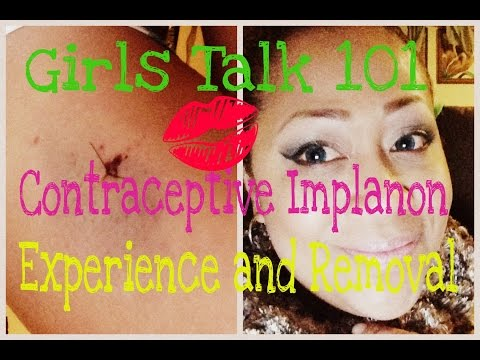 girls-talk-101-my-implanon-experience,-insertion-and-removal