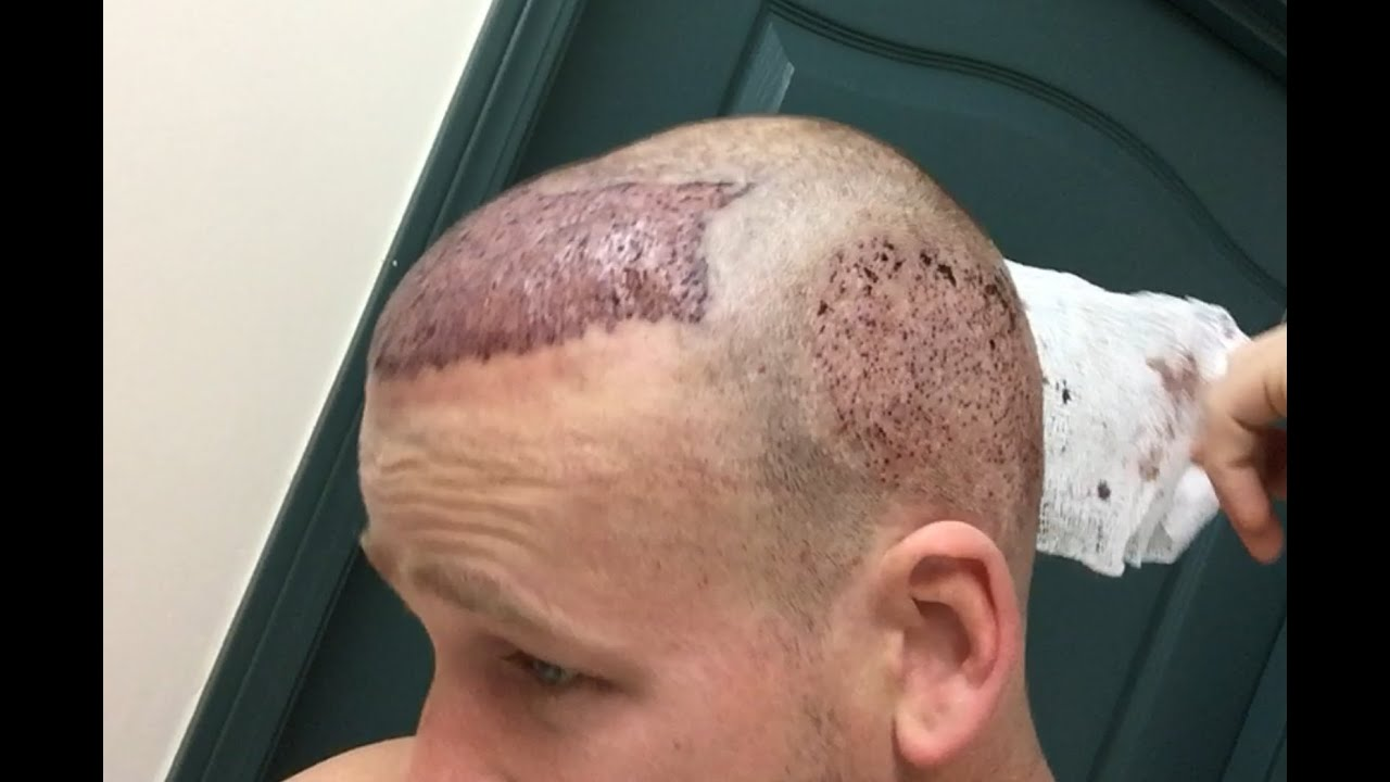 No sex day after hair transplant all