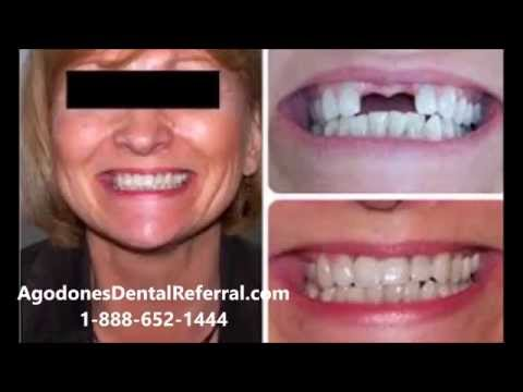 Dental Implants Yuma Arizona - Mexico Dental Implants!