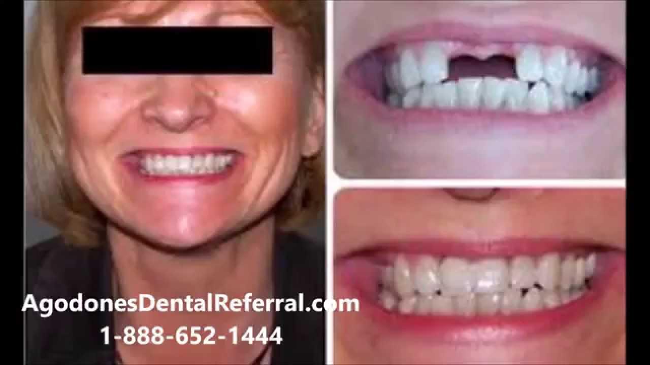 Dental Implants Yuma Arizona - Mexico Dental Implants! - YouTube