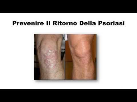 Malattie di pelle di eczema di mani