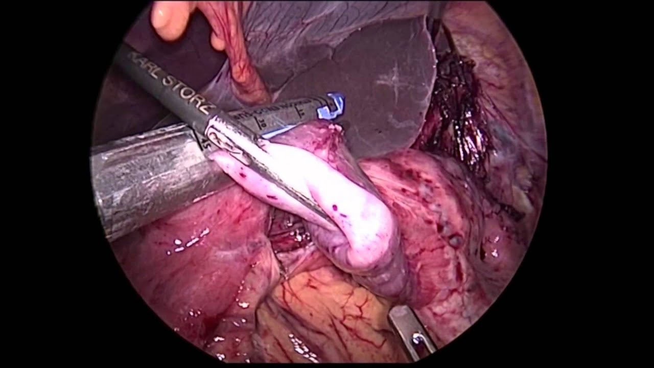 V040 Laparoscopic Revision Billroth Ii For Recurrent Gastrojejunal