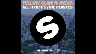 Yellow Claw ft. Ayden - Till It Hurts (Mr. Belt & Wezol Remix)