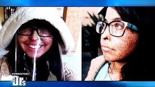 Genetic Skin Condition Forces Young Woman to Stay Indoors