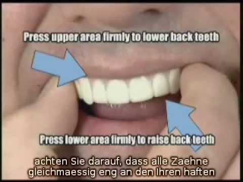 Die Zahnblende Für Perfekt Sitzende Zähne Zahnblendede