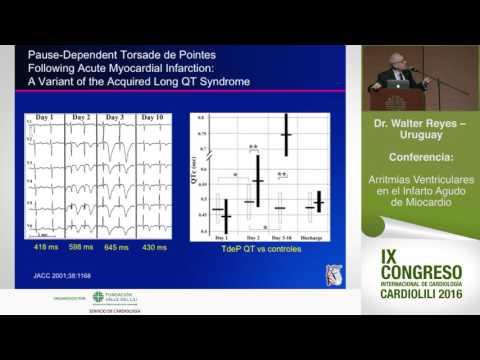 Arritmias Ventriculares en el Infarto Agudo de Miocardio, Dr Walter Reyes