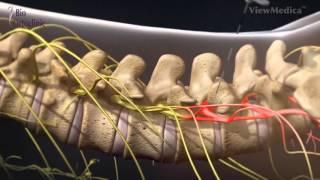 Dr Victor Panus - Infiltratiile contra durerii coloanei vertebrale