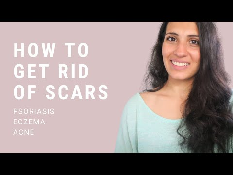 how-to-get-rid-of-eczema,-psoriasis-&-acne-scars