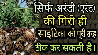 सिर्फ अरंडी की गिरी खाए,साइटिका को कहें बाय बाय|how to cure SCIATICA PERMANENTLY |dr.PRASHANT SHUKLA