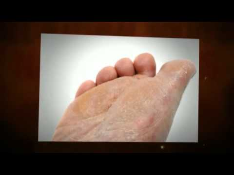 How to Cure Athlete's Foot (A Working Athlete's Foot Treatment)