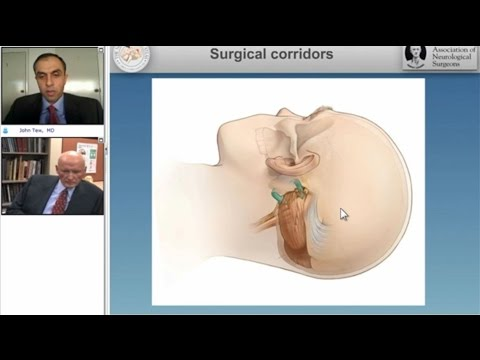 Microvascular Decompression Surgery for Hemifacial Spasm