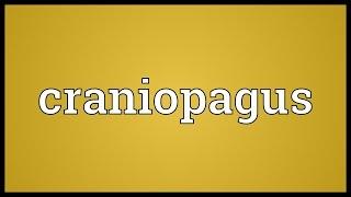 Craniopagus Meaning