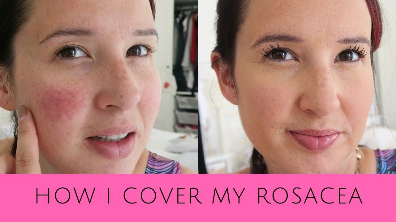 how i cover up my rosacea pregnancy rosacea make up tips. Black Bedroom Furniture Sets. Home Design Ideas