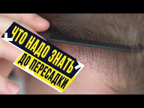 Что нужно знать до пересадки волос. 1 год после пересадки.