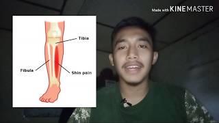 Penanganan Cedera Olahraga Shin Splint _ Nyeri Tulang Kering.