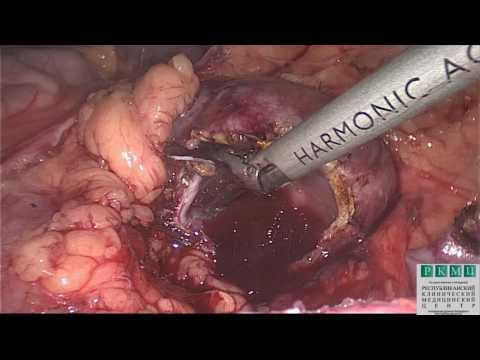 Экстрагенитальный эндометриоз: стенозирующий эндометриоз сигмовидной кишки