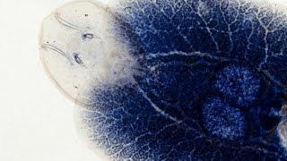 Naukowcy odkryli mechanizm infekcji człowieka przez mikroba zombie