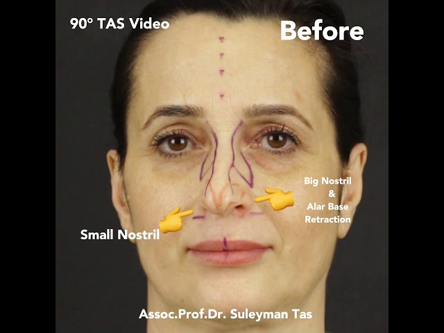 Nose Job Before and After Video