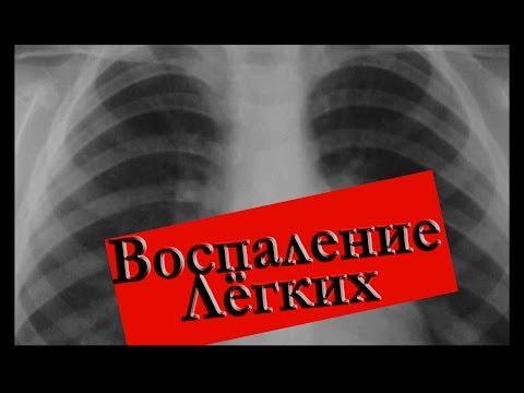 Пневмония - симптомы, лечение, признаки, профилактика
