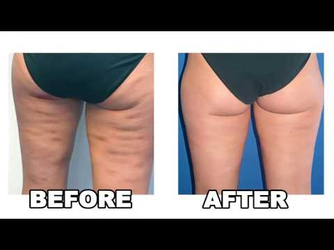 cellulite natural treatments – how to get rid of cellulite – cellulite natural treatment
