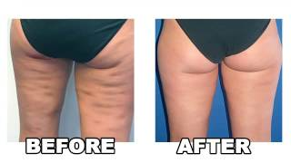 Cellulite Natural Treatments - How To Get rid Of Cellulite - Cellulite Natural Treatment