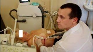 видео Мастопатия и лимфоузлы под мышкой: о чем говорит их увеличение