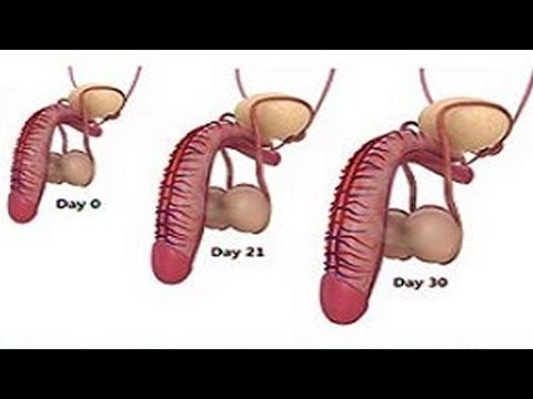 Watermelon Good for MEN's Health | ABCInfo from YouTube · Duration:  3 minutes 41 seconds