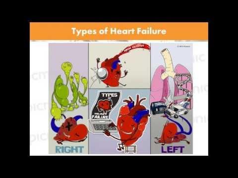 Heart Failure Made Easy | Picmonic Nursing Webinar