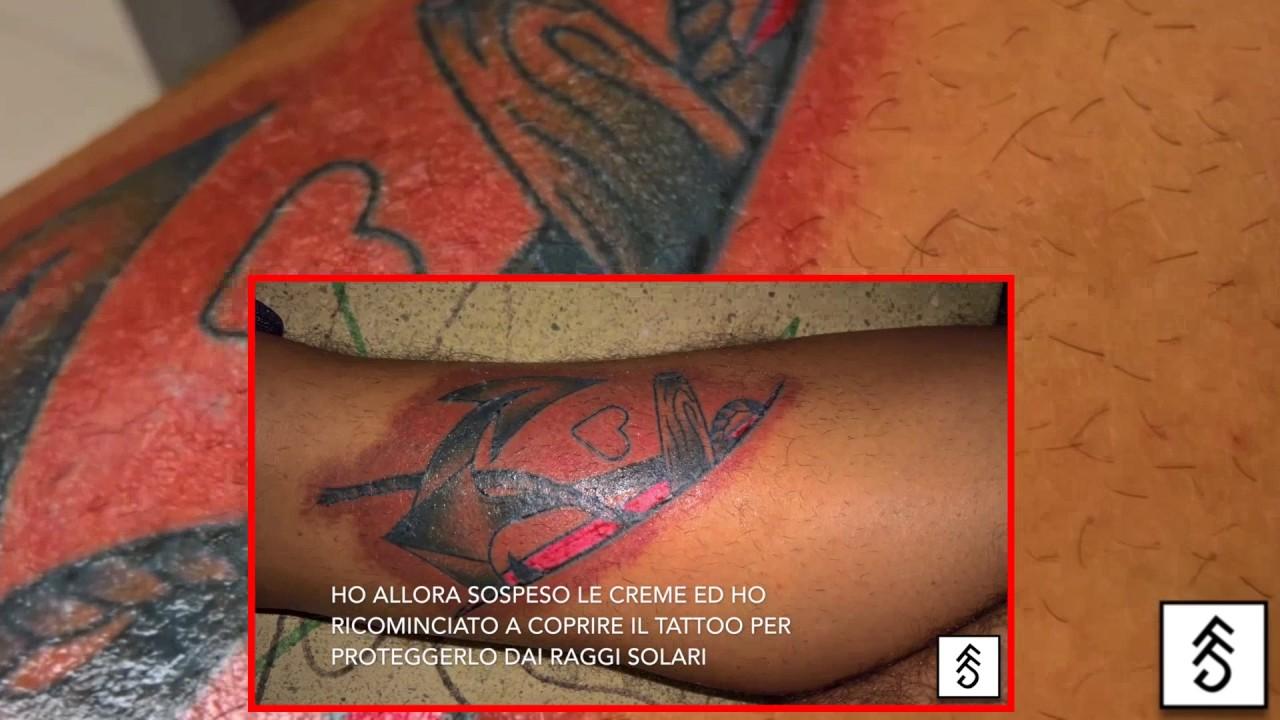 Tattoo infetto e rimedi e cure!