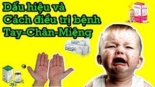 Dấu hiệu và cách điều trị bệnh tay chân miệng ở trẻ nhỏ   phụ nữ mang thai   mangthaibaby.com