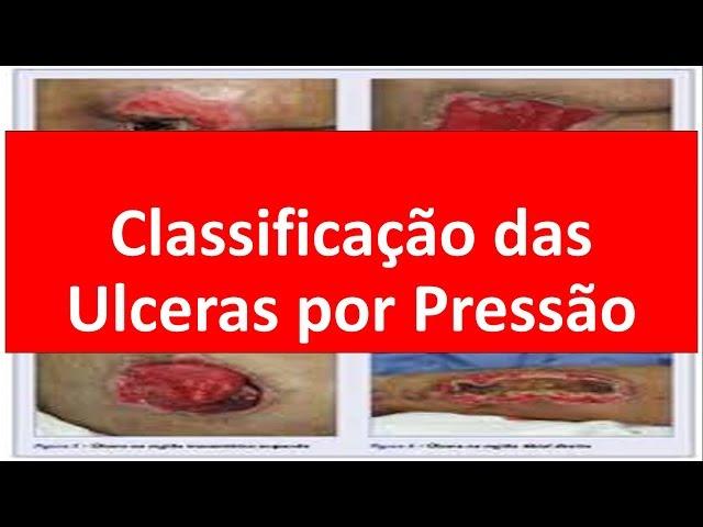 Classificação das Ulceras por Pressão