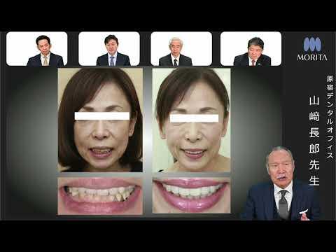 Digital Dentistryのステップバイステップ | PART4 Digital Dentistry 世界の潮流 | DMR 234号