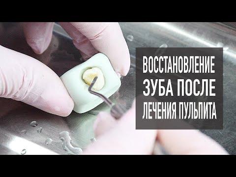 Лечение пульпита – часть 2 | пломбирование зубов  | стоматология Cамара