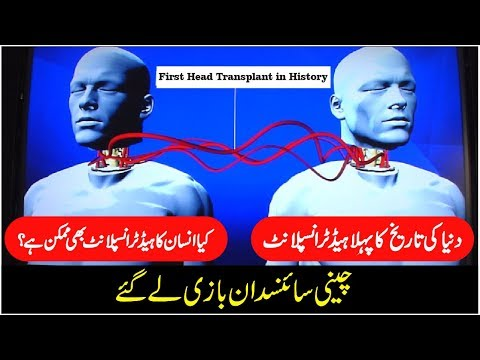 first head transplant documentary in urdu - first heart transplant documentary | [urdu / hindi]