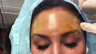 Suture suspension browlift with Dr. Ryan Hoffman