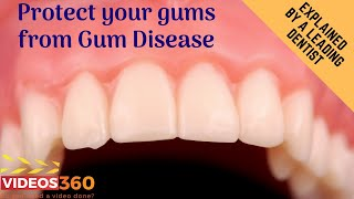 Now Trending - Kill the gram-negative bad bugs that cause Gum Disease – Dr. Carl Mcmillan