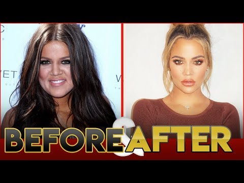 Khloe Kardashian | Before & After Transformation ( Fitness, Surgery, Pregnancy )