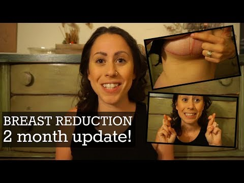 Breast Reduction: Scars, Nipples and Posture! (2 MONTHS POST OP!)