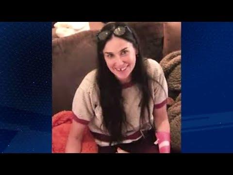 Domingo Espetacular Explica Porque A Atriz Demi Moore Perdeu Os Dentes