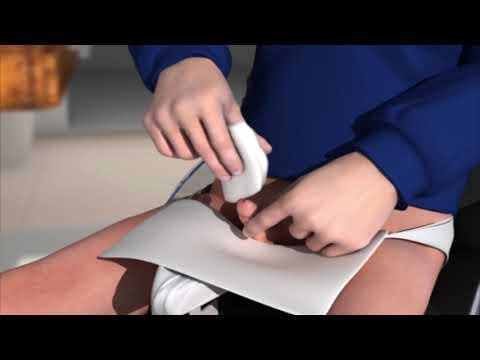 «Рекомендации по выполнению самокатетеризации для ребенка в инвалидном кресле»