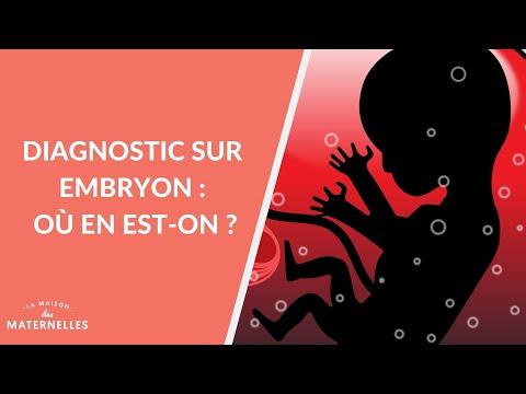 Diagnostic sur embryon: où en est-on ? - La Maison des maternelles #LMDM