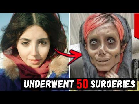 Unusual People Who Took Plastic Surgery Too Far...