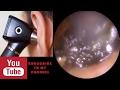 Take earwax - Ear wax removal kit | Giant Ear Wax Removal -Painful Blockage