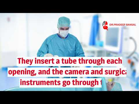What Is Laparoscopic Surgery || Dr. Pradeep Bansal Urologist Specialist